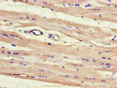 Immunohistochemistry (Formalin/PFA-fixed paraffin-embedded sections) - Anti-hnRNPLL antibody (ab234747)