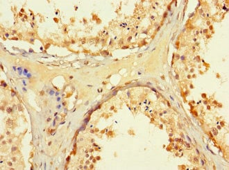 Immunohistochemistry (Formalin/PFA-fixed paraffin-embedded sections) - Anti-Tryptophan rich protein antibody (ab234748)