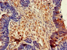 Immunohistochemistry (Formalin/PFA-fixed paraffin-embedded sections) - Anti-CRMP3 antibody (ab234749)