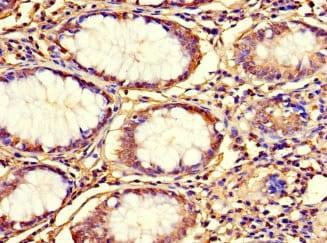 Immunohistochemistry (Formalin/PFA-fixed paraffin-embedded sections) - Anti-C12orf65 antibody (ab234765)