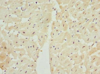 Immunohistochemistry (Formalin/PFA-fixed paraffin-embedded sections) - Anti-LECT1 antibody (ab234782)