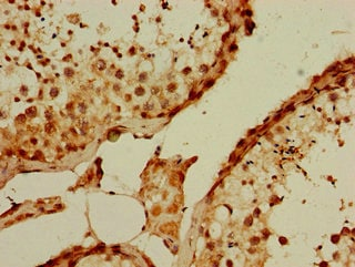 Immunohistochemistry (Formalin/PFA-fixed paraffin-embedded sections) - Anti-PQBP1 antibody (ab234790)