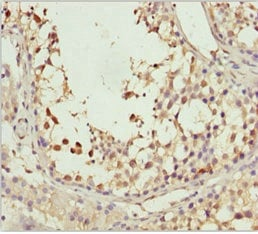 Immunohistochemistry (Formalin/PFA-fixed paraffin-embedded sections) - Anti-SPRED2 antibody (ab234795)