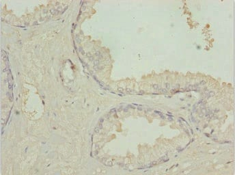 Immunohistochemistry (Formalin/PFA-fixed paraffin-embedded sections) - Anti-TM9SF1 antibody (ab234797)