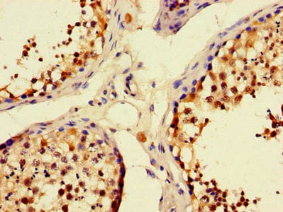 Immunohistochemistry (Formalin/PFA-fixed paraffin-embedded sections) - Anti-Munc13-3 antibody (ab234798)