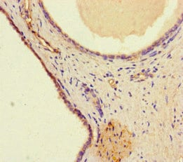 Immunohistochemistry (Formalin/PFA-fixed paraffin-embedded sections) - Anti-WDFY4 antibody (ab234800)