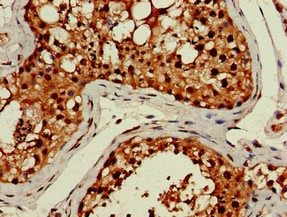 Immunohistochemistry (Formalin/PFA-fixed paraffin-embedded sections) - Anti-LHFPL5 antibody (ab234809)