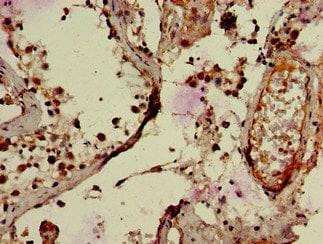 Immunohistochemistry (Formalin/PFA-fixed paraffin-embedded sections) - Anti-RNF126 antibody (ab234812)