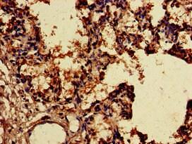 Immunohistochemistry (Formalin/PFA-fixed paraffin-embedded sections) - Anti-SNX15 antibody (ab234814)