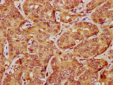 Immunohistochemistry (Formalin/PFA-fixed paraffin-embedded sections) - Anti-LATS1/WARTS antibody (ab234820)