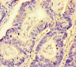 Immunohistochemistry (Formalin/PFA-fixed paraffin-embedded sections) - Anti-NRP2 antibody (ab234821)