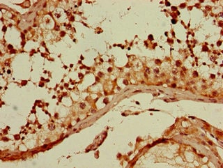 Immunohistochemistry (Formalin/PFA-fixed paraffin-embedded sections) - Anti-GNA11 antibody (ab234822)
