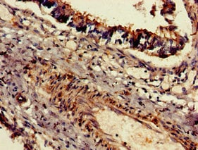 Immunohistochemistry (Formalin/PFA-fixed paraffin-embedded sections) - Anti-DNAH5 antibody (ab234826)