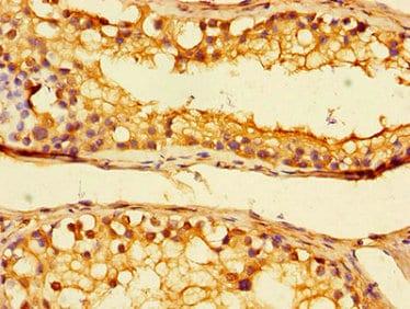 Immunohistochemistry (Formalin/PFA-fixed paraffin-embedded sections) - Anti-Uba6 antibody (ab234833)