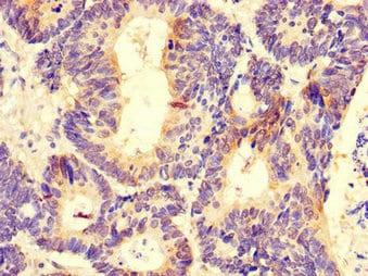 Immunohistochemistry (Formalin/PFA-fixed paraffin-embedded sections) - Anti-DDX6 antibody (ab234837)