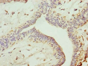 Immunohistochemistry (Formalin/PFA-fixed paraffin-embedded sections) - Anti-TRIM13 antibody (ab234847)