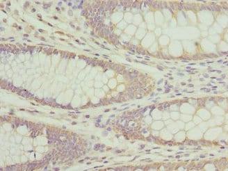 Immunohistochemistry (Formalin/PFA-fixed paraffin-embedded sections) - Anti-HPS2 antibody (ab234848)