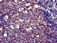 Immunohistochemistry (Formalin/PFA-fixed paraffin-embedded sections) - Anti-DNA polymerase eta antibody (ab234855)