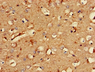Immunohistochemistry (Formalin/PFA-fixed paraffin-embedded sections) - Anti-DSCR1L1 antibody (ab234856)