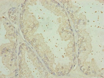 Immunohistochemistry (Formalin/PFA-fixed paraffin-embedded sections) - Anti-C9orf23 antibody (ab234857)