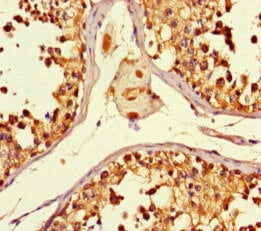 Immunohistochemistry (Formalin/PFA-fixed paraffin-embedded sections) - Anti-KMT3C / SMYD2 antibody (ab234862)