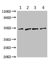 Western blot - Anti-GABPB2 antibody (ab234864)