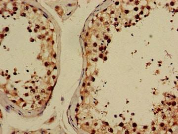 Immunohistochemistry (Formalin/PFA-fixed paraffin-embedded sections) - Anti-GABPB2 antibody (ab234864)