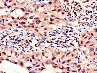 Immunohistochemistry (Formalin/PFA-fixed paraffin-embedded sections) - Anti-PFKFB2 antibody (ab234865)