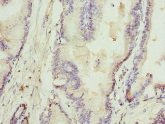 Immunohistochemistry (Formalin/PFA-fixed paraffin-embedded sections) - Anti-RTKN/Rhotekin antibody (ab234866)
