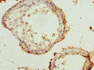 Immunohistochemistry (Formalin/PFA-fixed paraffin-embedded sections) - Anti-RTKN/Rhotekin antibody (ab234866)