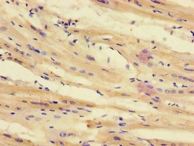 Immunohistochemistry (Formalin/PFA-fixed paraffin-embedded sections) - Anti-TTI1 antibody (ab234871)