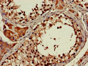 Immunohistochemistry (Formalin/PFA-fixed paraffin-embedded sections) - Anti-ATP9A antibody (ab234873)