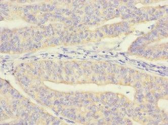 Immunohistochemistry (Formalin/PFA-fixed paraffin-embedded sections) - Anti-MRPL12 antibody (ab234880)