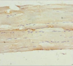 Immunohistochemistry (Formalin/PFA-fixed paraffin-embedded sections) - Anti-NPHP3 antibody (ab234882)