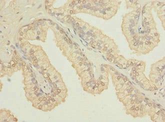 Immunohistochemistry (Formalin/PFA-fixed paraffin-embedded sections) - Anti-OSGEPL1 antibody (ab234883)