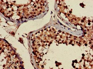 Immunohistochemistry (Formalin/PFA-fixed paraffin-embedded sections) - Anti-PRPS2 antibody (ab234886)