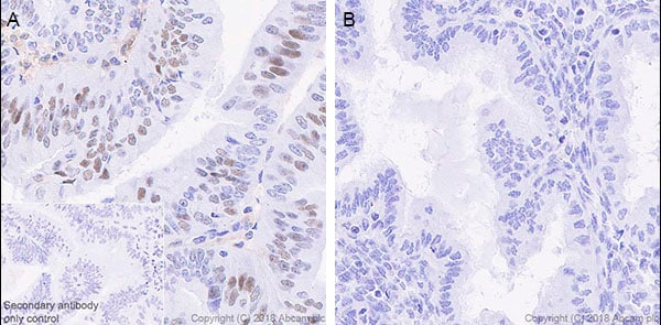 Immunohistochemistry (Formalin/PFA-fixed paraffin-embedded sections) - Anti-STAT1 antibody [EPRR21057-168] - BSA and Azide free (ab234902)