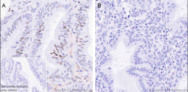 Immunohistochemistry (Formalin/PFA-fixed paraffin-embedded sections) - Anti-STAT1 antibody [EPR21057-141] - BSA and Azide free (ab234904)