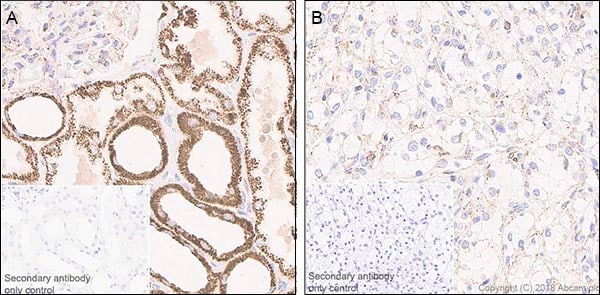 Immunohistochemistry (Formalin/PFA-fixed paraffin-embedded sections) - Anti-FH/Fumarase antibody [EPR21104] - BSA and Azide free (ab234905)