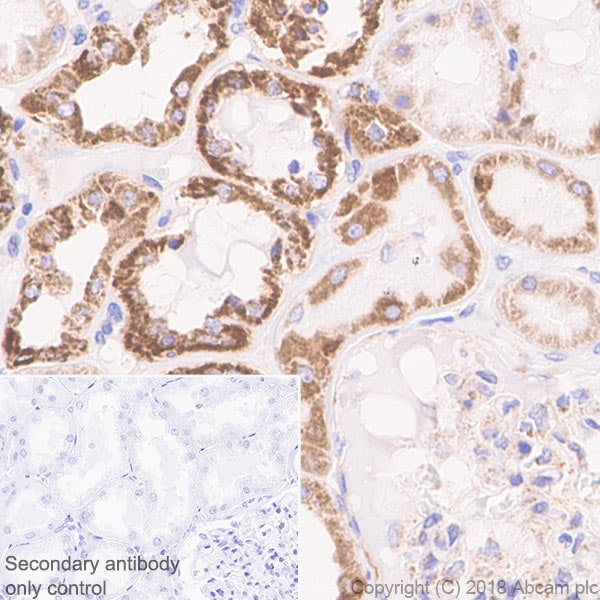 Immunohistochemistry (Formalin/PFA-fixed paraffin-embedded sections) - Anti-CPT1A antibody [EPR21843-71-1C] - BSA and Azide free (ab234906)