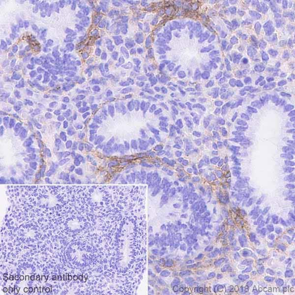 Immunohistochemistry (Formalin/PFA-fixed paraffin-embedded sections) - Anti-PDGFR alpha antibody [EPR22059-270] - BSA and Azide free (ab234965)