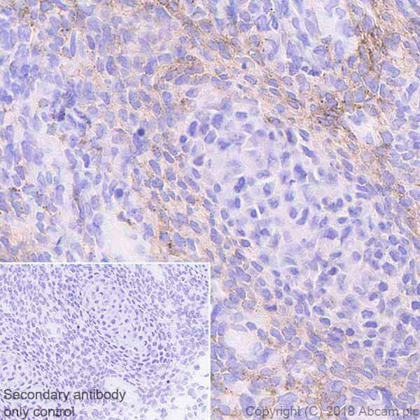 Immunohistochemistry (Formalin/PFA-fixed paraffin-embedded sections) - Anti-PDGFR alpha antibody [EPR22059-270] - BSA and Azide free (ab234965)