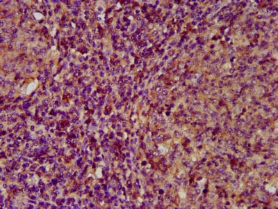 Immunohistochemistry (Formalin/PFA-fixed paraffin-embedded sections) - Anti-Extracellular matrix protein 1 antibody (ab234976)