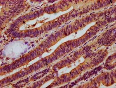 Immunohistochemistry (Formalin/PFA-fixed paraffin-embedded sections) - Anti-NAGPA antibody (ab234978)