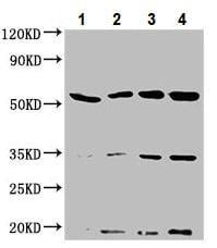 Western blot - Anti-NAGPA antibody (ab234978)
