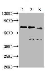 Western blot - Anti-MTG16 antibody (ab234985)