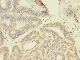 Immunohistochemistry (Formalin/PFA-fixed paraffin-embedded sections) - Anti-GDI2 antibody (ab234986)