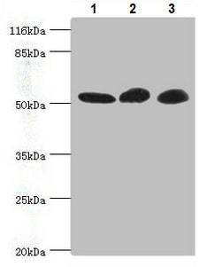 Western blot - Anti-GDI2 antibody (ab234986)