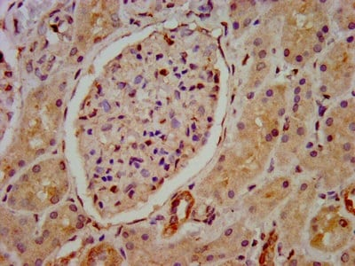 Immunohistochemistry (Formalin/PFA-fixed paraffin-embedded sections) - Anti-HIP1R antibody (ab234991)