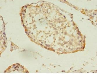 Immunohistochemistry (Formalin/PFA-fixed paraffin-embedded sections) - Anti-DNAJB5 antibody (ab234992)